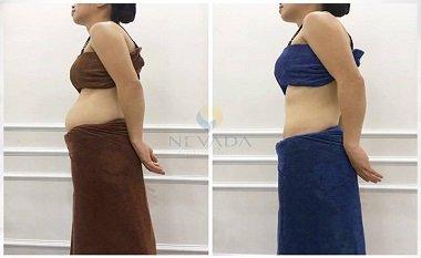 Kết quả của chị Thơm giảm béo bụng  tại Nevada
