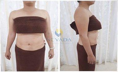 Kết quả của chị Thu Hương giảm mỡ bụng tại Nevada