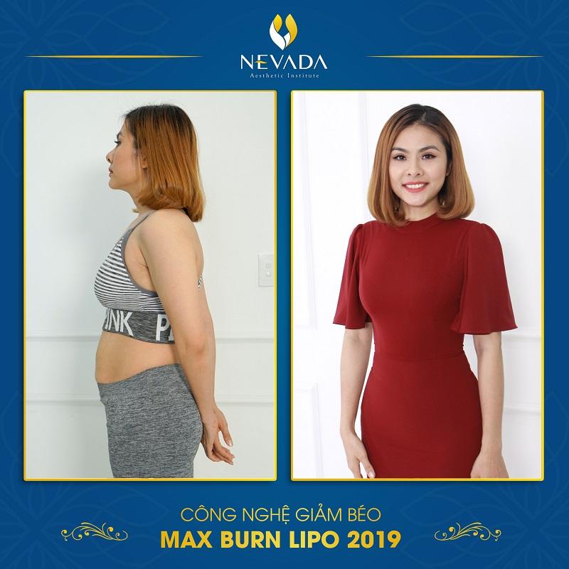 giảm béo bụng Max Burn Lipo