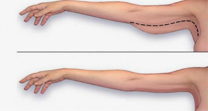 giảm mỡ bắp tay bắp chân