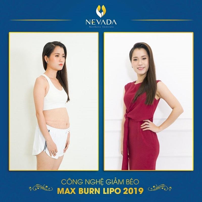 hình ảnh khách hàng trước và sau khi giảm béo Max Burn Lipo