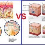 Review công nghệ giảm béo Max Burn Lipo và Lipo Matic 3D có hiệu quả tốt không?