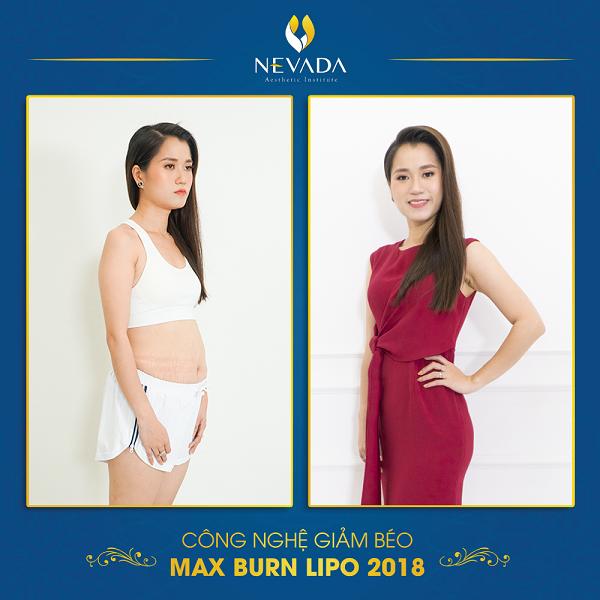 Lâm Vỹ Dạ giảm béo Max Burn Lipo