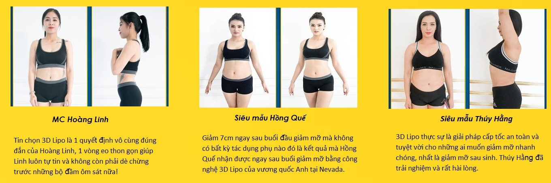 giảm mỡ bụng bằng công nghệ, giảm béo mỡ bụng 3d lipo plus