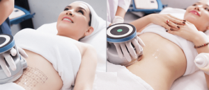 máy giảm béo cavi-lipo, công nghệ giảm mỡ béo bụng bằng công nghệ cavi lipo