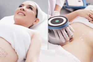 Công nghệ giảm béo Cavi Lipo so sánh với Max Burn Lipo