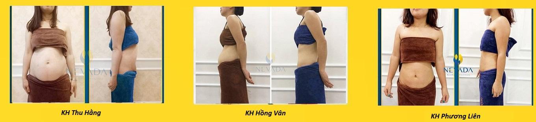 Công nghệ giảm béo vùng mỡ bụng Max Burn Lipo là gì có tốt không