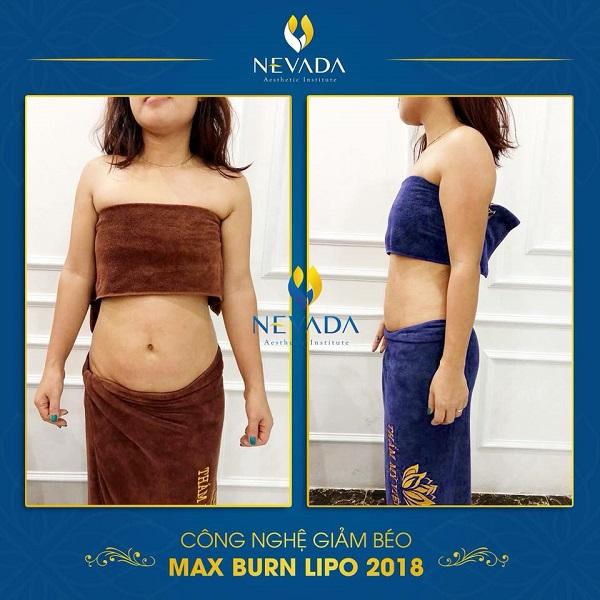 giảm béo không lo tái béo