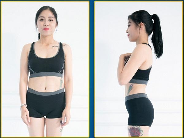 giảm béo không dao kéo