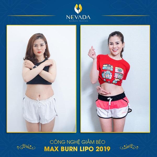 giảm béo Max Burn Lipo có để lại tác dụng phụ gì không?