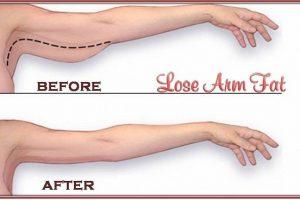 So sánh hiệu quả và chi phí của các cách làm giảm mỡ bắp tay cấp tốc phổ biến hiện nay