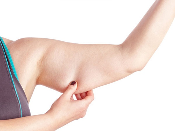 Chi phí giảm mỡ bắp tay