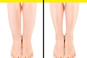 """4 thói quen khiến bắp chân to như """"cột đình"""" và cách làm giảm béo bắp chân siêu tốc chỉ trong 10 ngày"""