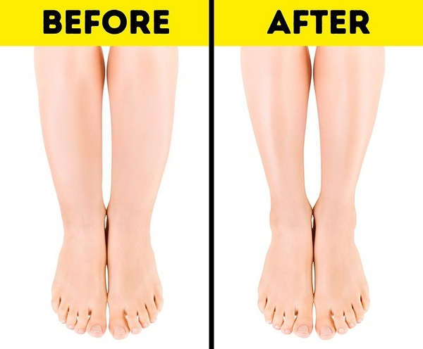 béo bắp chân