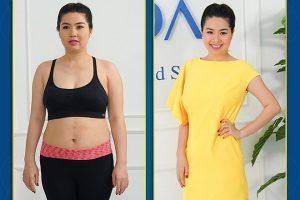 Sau sinh bao lâu thì có thể giảm béo bằng công nghệ Max Burn Lipo?