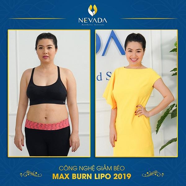 Giảm béo sau sinh bằng Max Burn Lipo