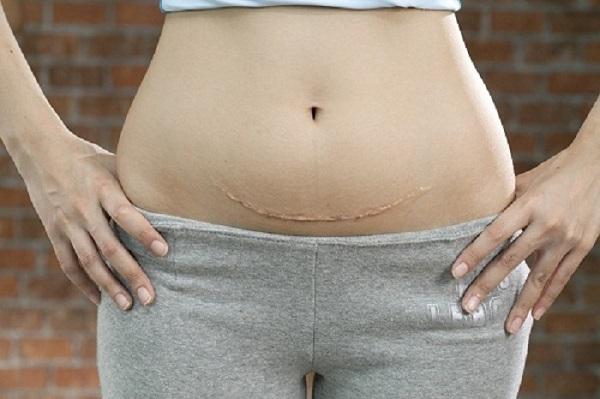 kinh nghiệm, bài tập, 7 cách giảm cân, giảm mỡ bụng sau sinh mổ bằng muối tại nhà webtretho bao lâu thì giảm mỡ bụng