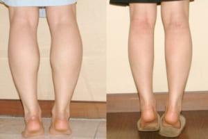 Cách nhận biết bắp chân to cơ địa – 1001 cách khắc phục nhược điểm bắp chân to
