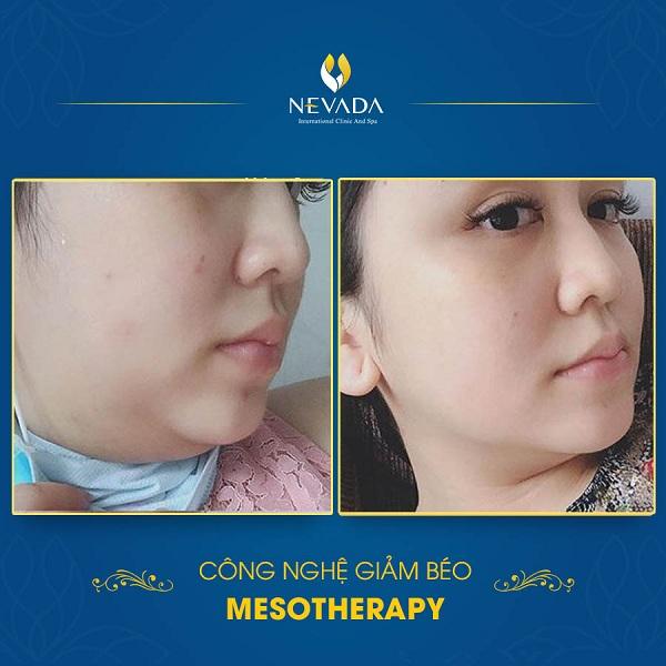 Review tiêm béo Mesotherapy có hiệu quả không? Tiêm béo Mesotherapy có an toàn không, tiêm béo Mesotherapy giá bao nhiêu, tiêm béo mesotherapy ở đâu,