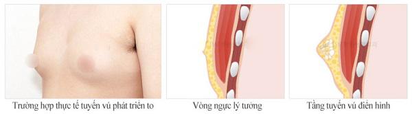 cách làm giảm mỡ ngực cho nam