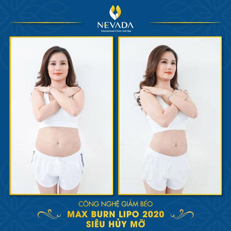xông hơi giảm mỡ bụng, cách xông hơi giảm mỡ bụng, xông hơi có giảm mỡ bụng